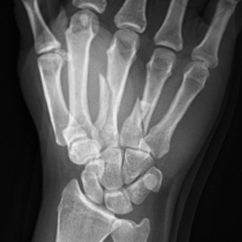 Wrist hand fracture image